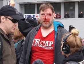 Trump supporter attacked 1